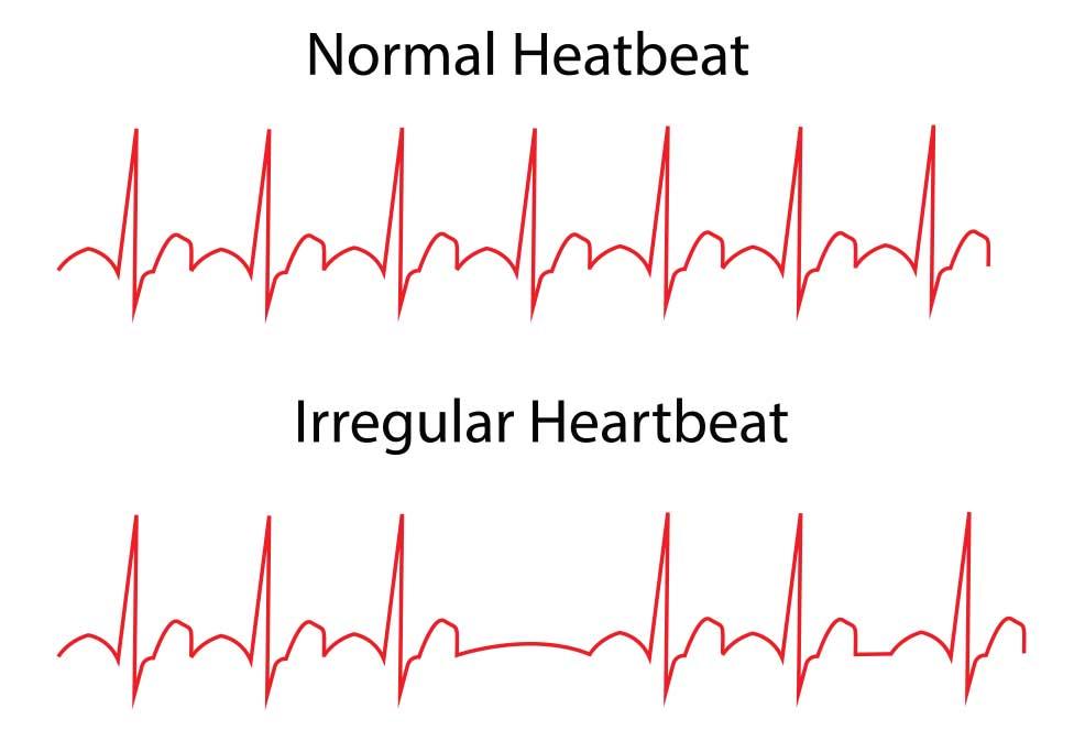 кардиолог лечение