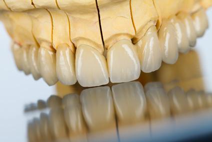 дентално изграждане на керамични зъби